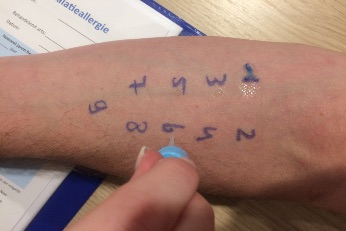 General Medical Practice de Makroon Amsterdam allergy test